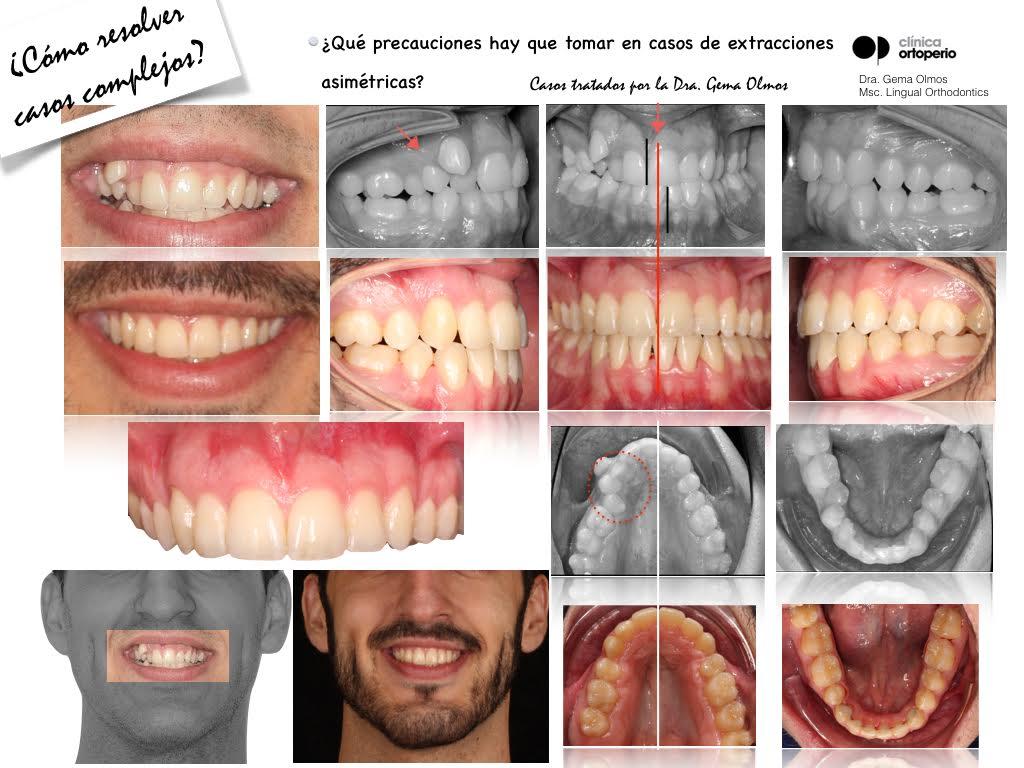 4ª Edición Curso Intensivo de Ortodoncia Lingual 9