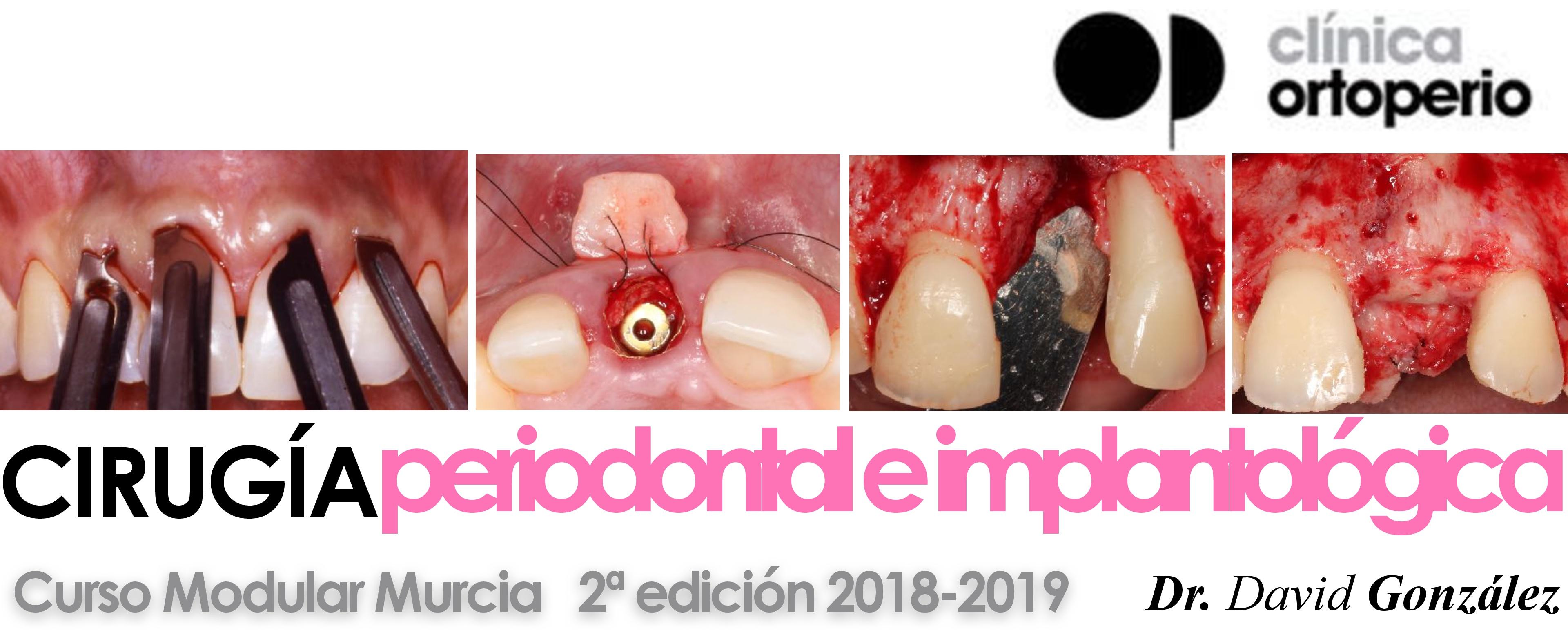 Curso cirugía periodontal e implantológica 1