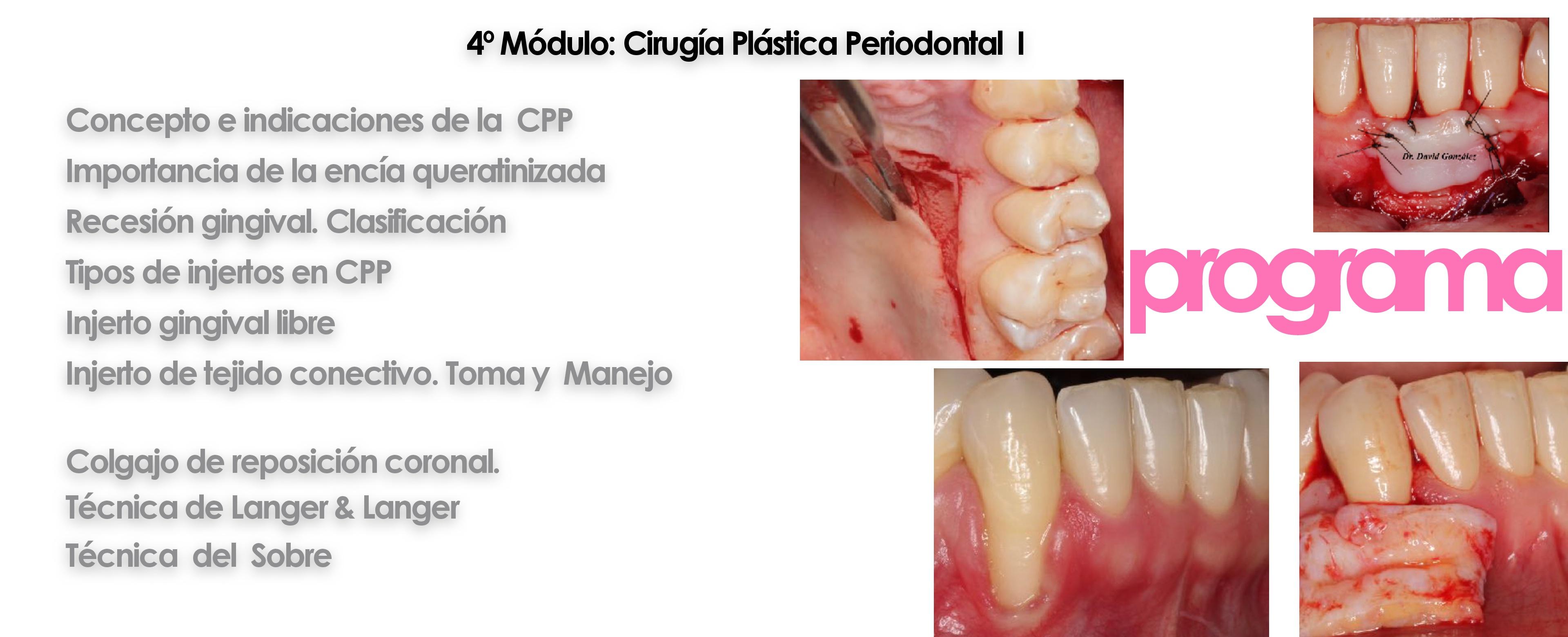 Curso cirugía periodontal e implantológica 8