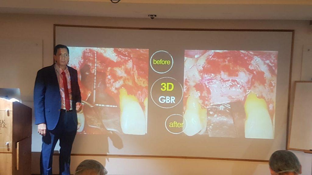 Nuestro director Dr. David González impartió un curso de 3 días sobre Regeneración Ósea y tratamiento de implantes en Nueva Delhi 1