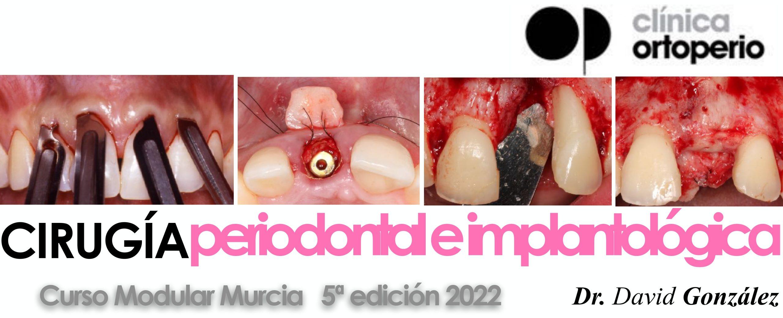 Curso cirugía periodontal e implantológica 2022 1