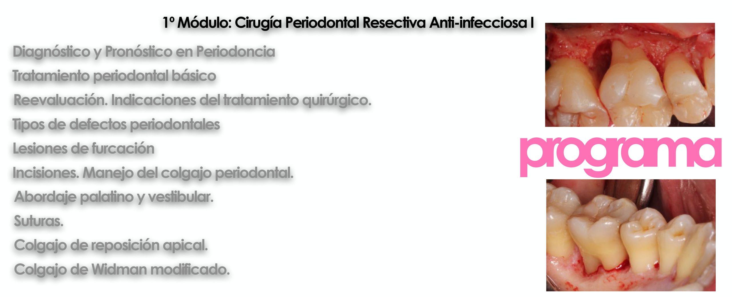Curso cirugía periodontal e implantológica 2022 5