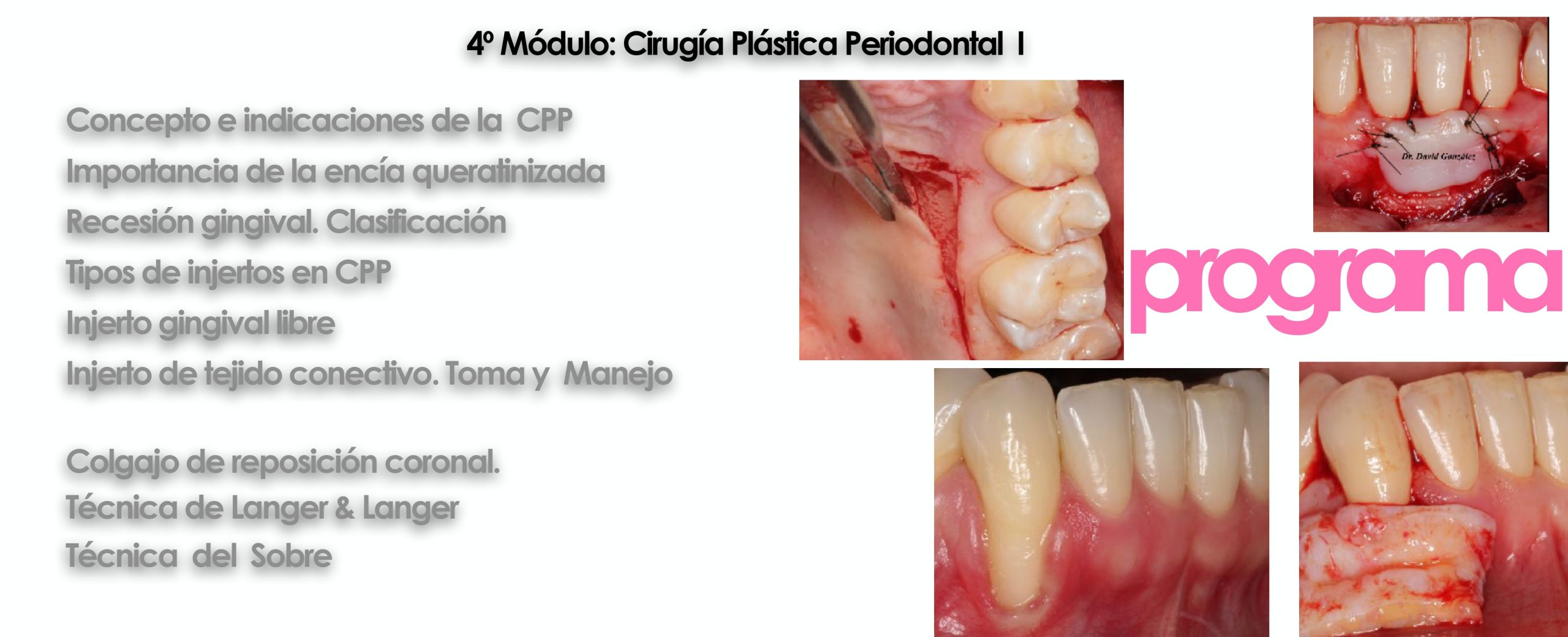 Curso cirugía periodontal e implantológica 2022 8