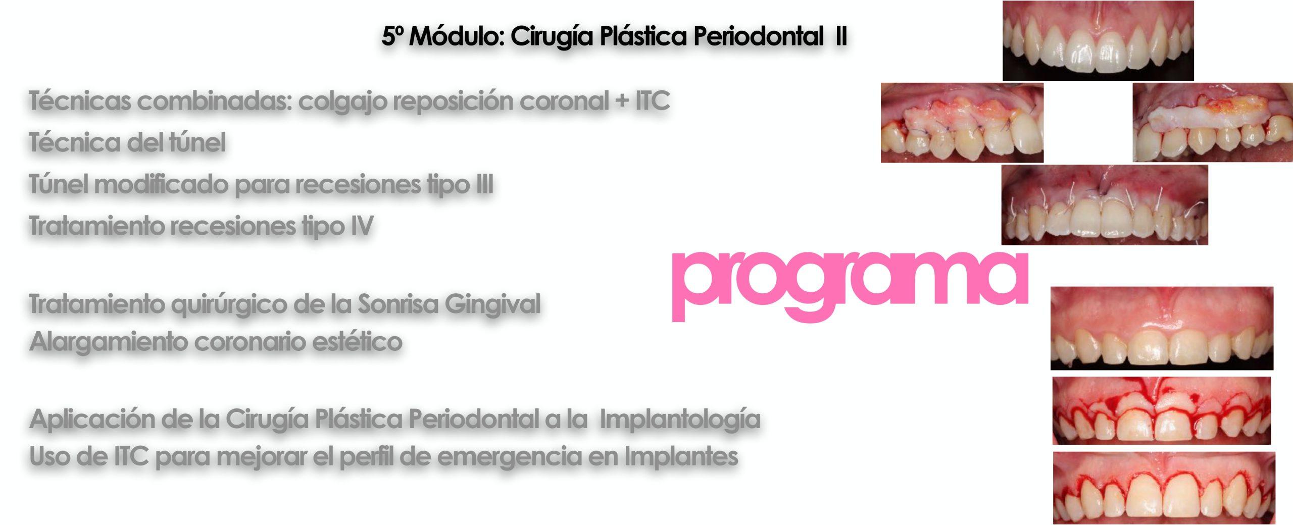 Curso cirugía periodontal e implantológica 2022 9