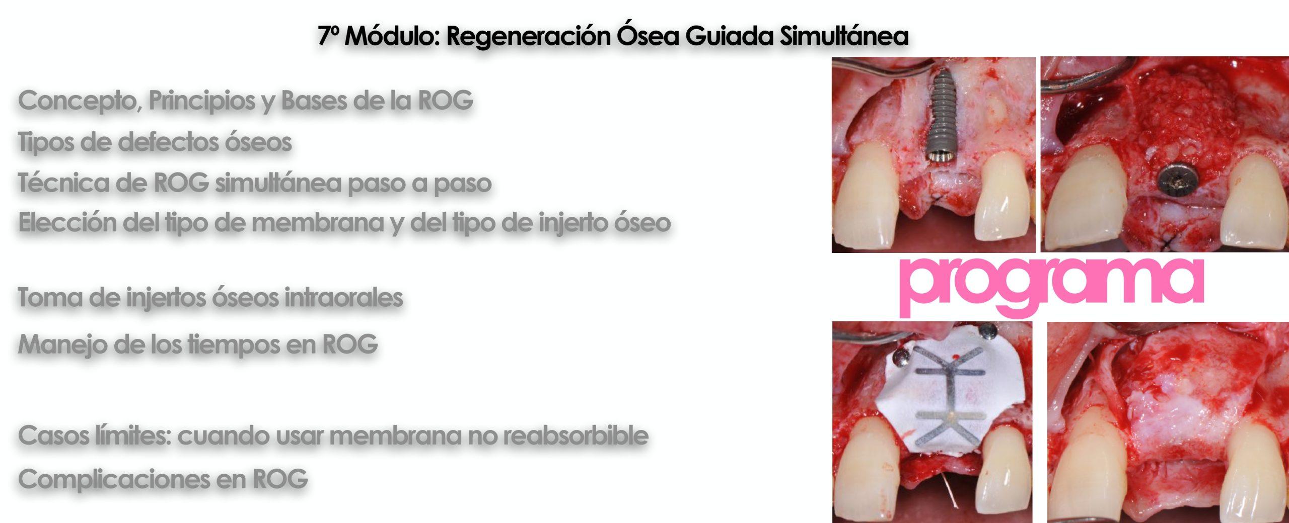 Curso cirugía periodontal e implantológica 2022 11