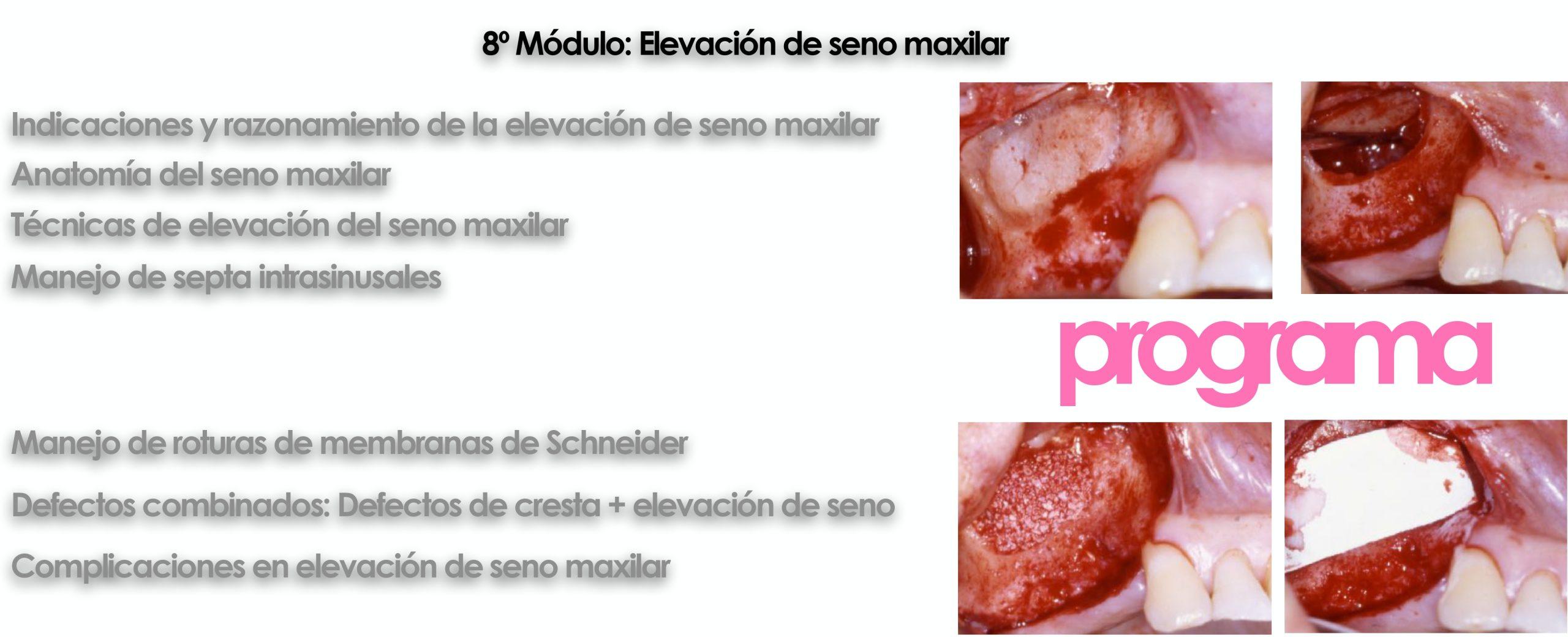 Curso cirugía periodontal e implantológica 2022 12